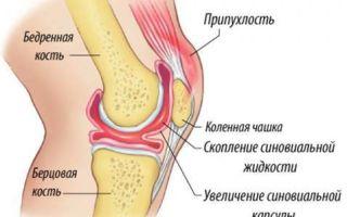 Синвиск: принцип действия протеза синовии, состав и форма выпуска, показания и противопоказания к применению, дозировка и способ применения