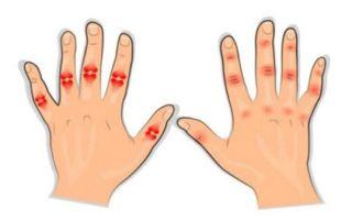 Ювенильный ревматоидный артрит у детей: описание и диагностика заболевания, разновидности и способы лечения болезни