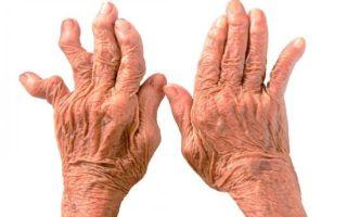 Болит кисть руки: консервативный подход и показания для вмешательства, возможные заболевания и применение медикаментов, народные способы снятия воспаления