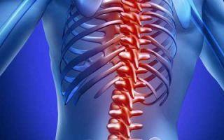 Остеомиелит позвоночника: причины, симптомы, виды и формы заболевания, диагностика и лечение