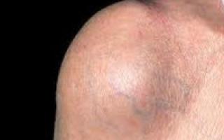 Бурсит плечевого сустава: причины возникновения и клиническая картина, диагностика заболевания и способы терапии, как предупредить недуг
