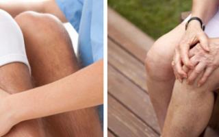 Артротомия сустава: показания и противопоказания к операции, виды вмешательства и механизм проведения процедуры, послеоперационный период и возможные осложнения