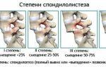 Спондилез грудного отдела позвоночника: причины патологии и группы риска, операция и консервативное лечение, методы диагностики