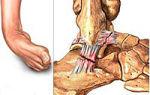 Разрыв связок голеностопного сустава: степени и лечение повреждения, возможные причины и симптоматика, к какому врачу обратиться