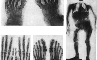 Хондродисплазия: особенности и классификация заболевания, разновидности патологии и методы лечения, способы диагностики