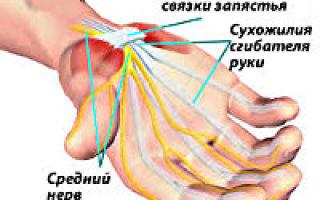 Болит сустав большого пальца на руке: синдром запястного канала и способы его лечения, когда требуется помощь врача и как предоствратить заболевание, возможные патологии