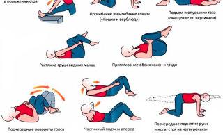 Пояснично-крестцовый радикулит: причины и признаки заболевания, методы нелекарственного лечения и медикаментозная терапия, польза массажа