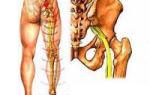 Неврит седалищного нерва: причины развития заболевания, клиническая картина и методы диагностики, лечение медикаментами и полезные физиотерапевтические мероприятия