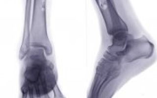 Остеогенная саркома: характер патологии и локализации у детей и взрослых, причины образования, стадии и симптомы развития, диагностика и лечение