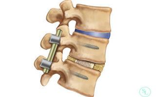 Задний и передний спондилодез: суть операции, подготовительные мероприятия и техника проведения процедуры, реабилитационный период и сроки восстановления