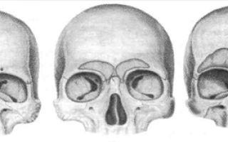 Перелом лобной кости: распространенные причины и виды повреждений, симптомы и правила оказания первой помощи, диагностика и лечение у взрослых и детей
