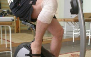 Эндопротезирование коленного сустава: подготовка, этапы операции и качественный реабилитационный период, профилактика осложнений и запрещенные виды деятельности