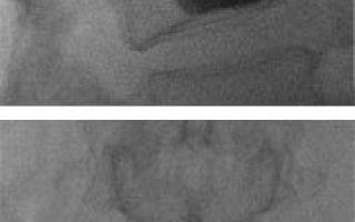 Вертебропластика позвоночника: что такое, противопоказания и показания, когда назначается, особенности подготовки, проведение и реабилитация после процедуры