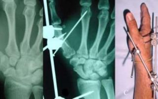 Перелом пястной кости: виды и причины повреждения, отличительные признаки и диагностика, первая помощь пострадавшему и методы лечения, реабилитация и возможные осложнения