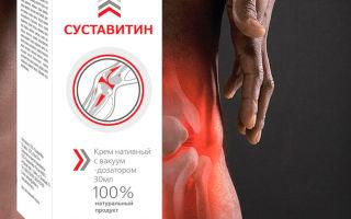 Крем сустарад для лечения заболеваний суставов: состав и особенности препарата, показания и противопоказания, отзывы о применении средства и цена