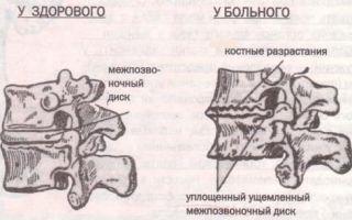 Деформирующий спондилез шейного отдела позвоночника: подробно о болезни, ее признаках, методах диагностики и лечения, рекомендации для предупреждения осложнений