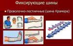 Шина крамера при переломе: особенности конструкции, показания и правила к применению, техника и последовательность наложения на разные части тела