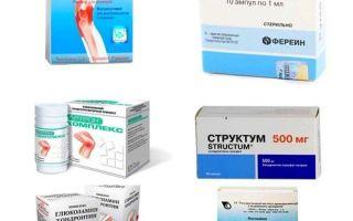 Перечень таблеток от артроза суставов: список эффективных лекарств и их разновидности, рейтинг 2019 и правила приема, отзывы покупателей