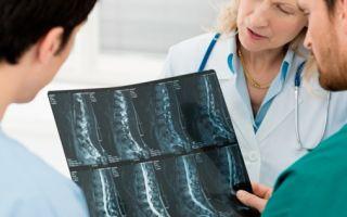 Болезнь бехтерева: причина ипатогенез заболевания, последствия и возможные осложнения патологии, продолжительность жизни