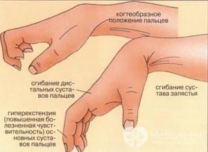 Ушиб кисти руки: отличие травмы от перелома, правила оказания первой помощи, лечение медикаментами и народными средствами, реабилитационные мероприятия
