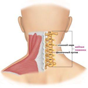 Причины грыжи диска С5-С6: симптомы патологии, методы диагностики на разных стадиях, особенности медикаментозного, консервативного и хирургического лечения