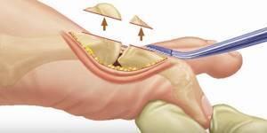 Удаление косточки на большом пальце ноги: причины появления, плюсы и минусы хирургического метода, показания и противопоказания к операции