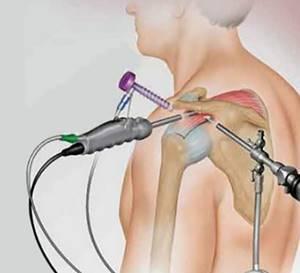 Ушиб плеча: причины травмы, классификация по степени тяжести и основные симптомы, методы диагностики, иммобилизация сустава и способы лечения, возможные осложнения