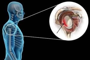 Повреждение Банкарта: клиническая картина и классификация травмы, диагностика и первая помощь, методы терапии и сроки восстановления