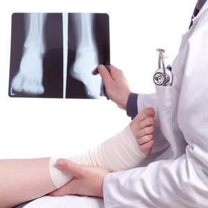 Эндопротезирование голеностопного сустава: описание и характерные особенности операции, подготовка и реабилитация, показания и противопоказания к манипуляции