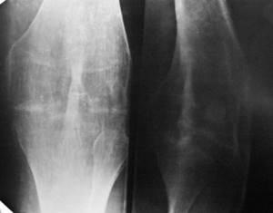 Анкилоз суставов: классификация и причины развития патологии, характерные признаки и лечебные мероприятия, показания к операции и прогноз для здоровья, меры профилактики