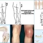 Эпифизеолиз: что такое, как развивается патология, стадии, симптомы и особенности лечения заболевания