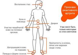 Реактивный артрит у детей: причины заболевания и отличительные черты заболевания в детском возрасте, методики лечения и диагностики
