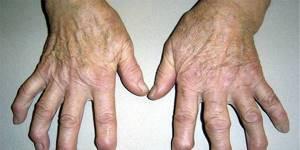 Серонегативный спондилоартрит: что это такое, описание заболевания и клиническая картина, способы лечения и диагностики болезни