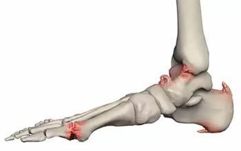 Остеофит пяточной кости лечение народными средствами