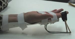 Защемление нерва в руке: причины патологического состояния, клинические симптомы и методы диагностики, современные и народные способы лечения, показания к операции