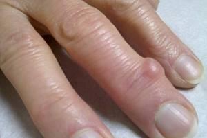 Гигрома пальца руки: причины появления новообразования, характерные симптомы и методы диагностики, современные и народные способы лечения, возможные осложнения и прогноз