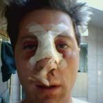 Перелом носа: классификация и отличительные симптомы травмы, правила оказания первой помощи и особенности лечения, последствия и реабилитация