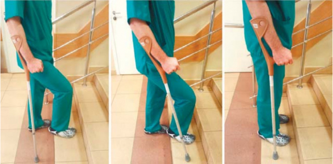 Реабилитация после эндопротезирования коленного сустава: требования к положению ног и движениям, упражнения, правила питания