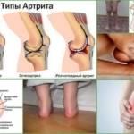 Артрит: виды заболевания и признаки возникновения патологии, диагностика и методы терапии, классификация болезни и прогноз