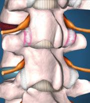 Упражнения при спондилоартрозе грудного и шейного отделов позвоночника: какие являются эффективными, комплексы движений и противопоказания, правила выполнения