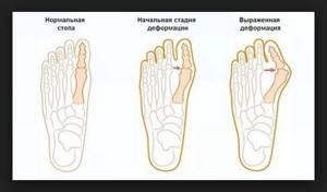 Магнитный пластырь hyperosteogeny (Хайперостеожени) от косточек на ногах: какие компоненты содержит и от чего помогает, стоимость средства и способы приобретения, правда или развод