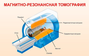 Рентген грудного отдела позвоночника: для чего назначается, что показывает, как проводится диагностика, противопоказания и особенности метода