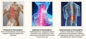 Физиотерапия при остеохондрозе для поясницы и шеи: рекомендации и противопоказания, принцип действия и разновидности метода, эффективные процедуры