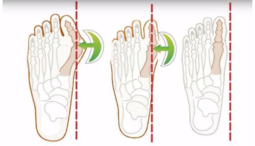 Вальгулекс: полезные свойства и особенности шины для коррекции косточки на большом пальце стопы, принцип действия и противопоказания