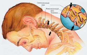Хондроз: что такое, причины появления болезни, какие существуют виды, симптомы, диагностика и лечение