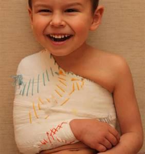Перелом ключицы у ребенка: классификация и причины травмы, характерные симптомы и правила оказания первой помощи, способы лечения и сроки восстановления
