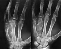 Хондроматоз суставов: что это такое, причины и признаки заболевания, методы лечения и проявления на ногах