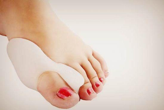 Шишка на мизинце ноги: фото, основные способы борьбы с недугом, причины и возможные заболевания