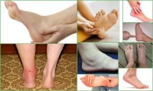 Тендовагинит: что это такое, симптоматика заболевания и внешние проявления патологии, способы терапии и диагностики