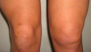 cупрапателлярный бурсит коленного сустава: общая информация о заболевании, симптоматика и причины патологии, консервативная терапия и медикаментозное лечение, народные средства